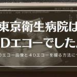 東京衛生病院は2Dエコー